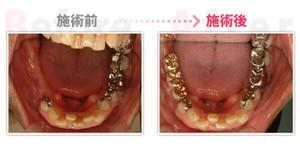 Implant001
