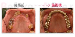 Implant003