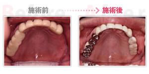 Implant005