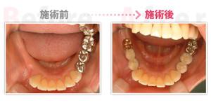 Implant006