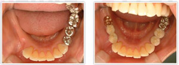 Implant006_2