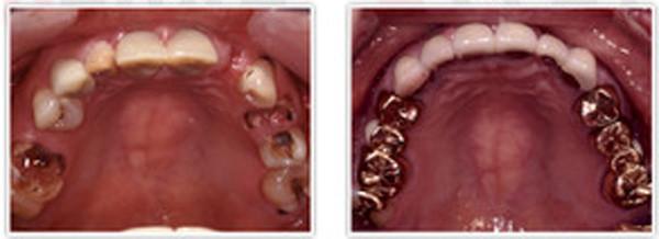 Implant008